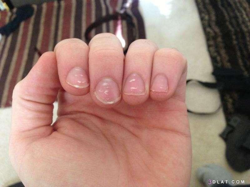 Fingernails reveal vitamin deficiency, Arabic newspaper -Profile News